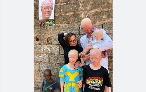 Metronews.ru: Александр Зданевич о положении людей с альбинизмом в Африке